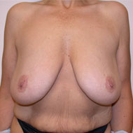Breast Augmentation Before And After Pictures Photos